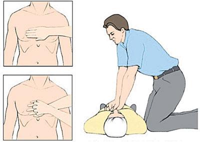 Kalp Krizinde İlk Yardım